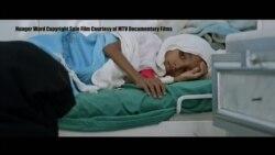 Dokumentar i ri mbi katastrofën humanitare në Jemen