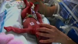 New Research May Hold Clues About Preterm Births