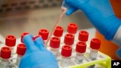 지난달 11일 미국 뉴욕 롱아일랜드의 한 실험실에서 연구원이 신종 코로나바이러스 감염증(COVID-19)확진자의 검체를 추출하고 있다. (자료사진)