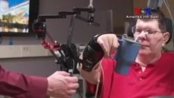 Yeni Teknolojiyle Felçli Hastalar Kollarını Hareket Ettirebiliyor