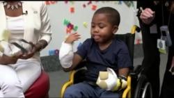 Лікарі повернули 8-річній дитині руки. Відео