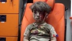 敘利亞空襲中受傷男孩照片抓住人心