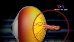 Göz Tansiyonu ve Tedavisi
