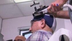 Demencia estimulación magnética