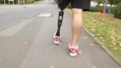 Chân giả thông minh giúp người khuyết tật dễ đi lại