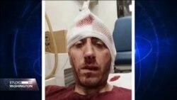 Solidarnost novinara širom zemlje sa napadnutim kolegom Kovačevićem