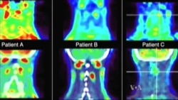 Pomoć za pacijente s hroničnim bolom?