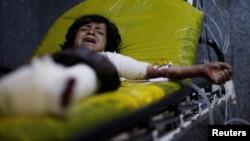 Seorang anak yang menjadi korban serangan udara dirawat di rumah sakit Sanaa, Yaman Rabu (15/7).