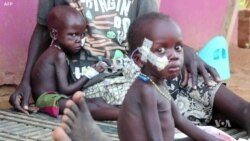 Researchers: Human Toll Of South Sudan War 'As Bad As Iraq or Syria'