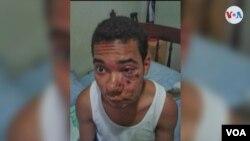 Imagen de Andrés Eloy Bueno tras sufrir quemaduras en su rostro durante una protesta estudiantil en Caracas. Denuncia que unos guardias nacionales lo obligaron a oler gases lacrimógenos, lo que le provocó serios problemas de salud. Foto: Cortesía.