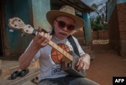 A Malawi musician with albinism, Lazarus Chigwandali, practices his guitar and drum before leaving his home at Likuni to go and perform at a market in the capital Lilongwe on May 10, 2019.