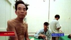Gần nửa dân số Việt Nam mang vi khuẩn lao