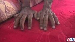 مردی که دستان از دسته رفته اش را باز یافت