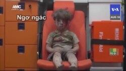 Bức ảnh cậu bé Aleppo – biểu tượng nỗi đau Syria