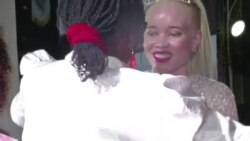 Zimbabwe Hosts First Albino Beauty Pageant to Raise Awareness, End Violence