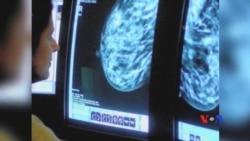 Giá trị của việc chụp quang tuyến vú