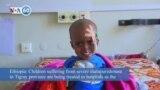 VOA60 Africa - Ethiopia: Children suffer from severe malnourishment in Tigray province