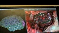 Epilepsiya - Yeni araşdırmalar
