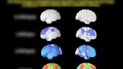 看天下: 阿尔海默症研究取得进展